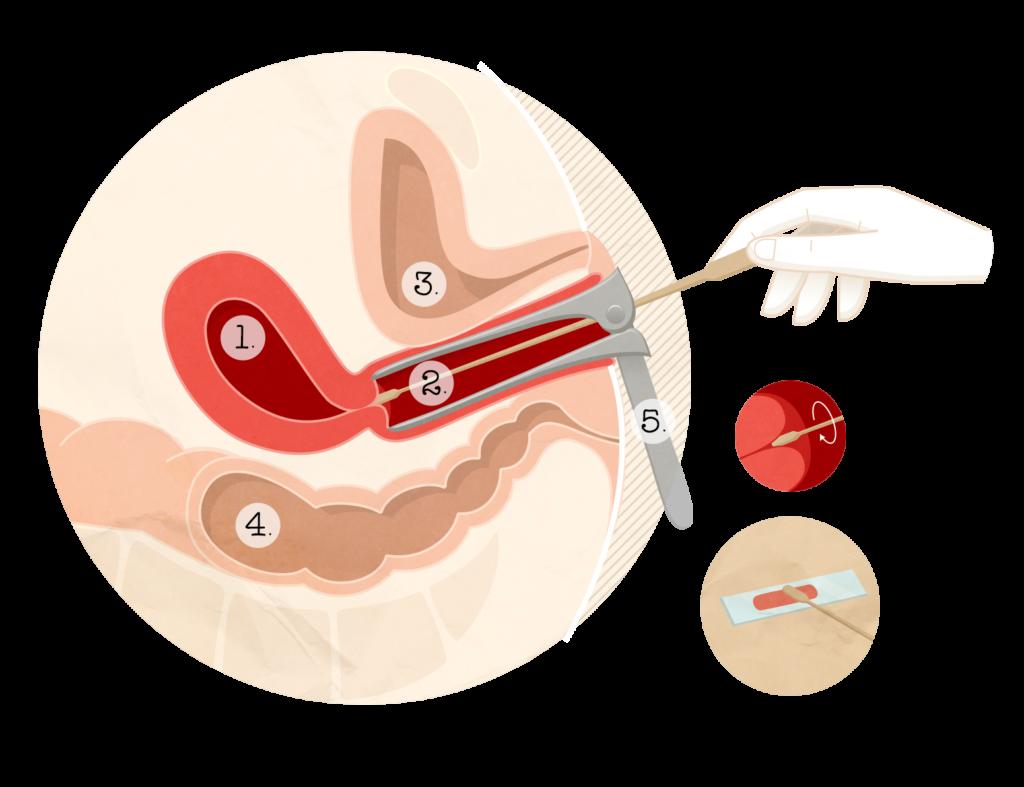 papillomavirus femme operation)