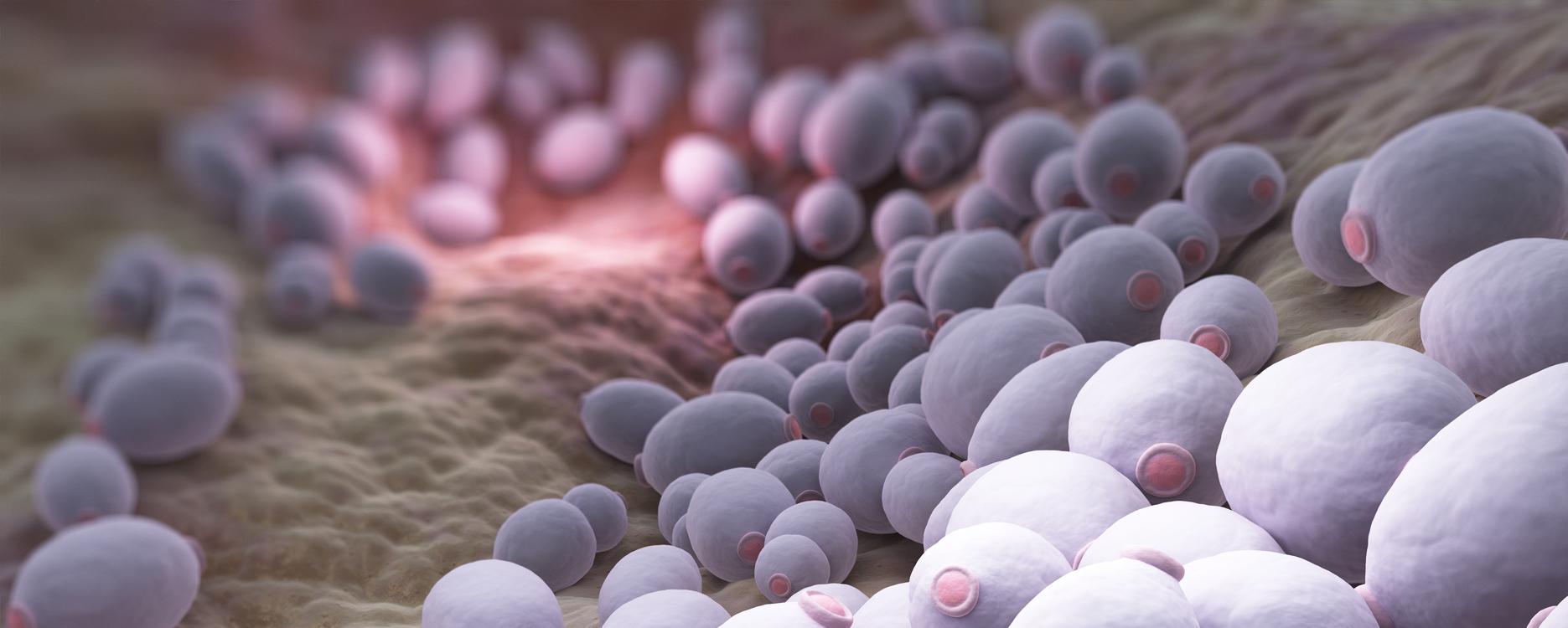 mycose vaginale recidive